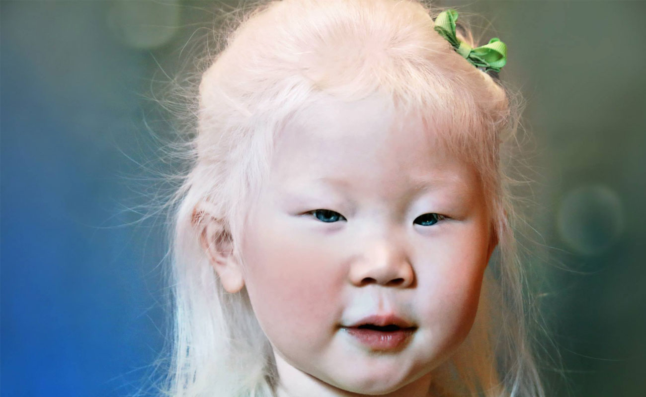 /uploads/771355alale.co--Albinism--1.jpg