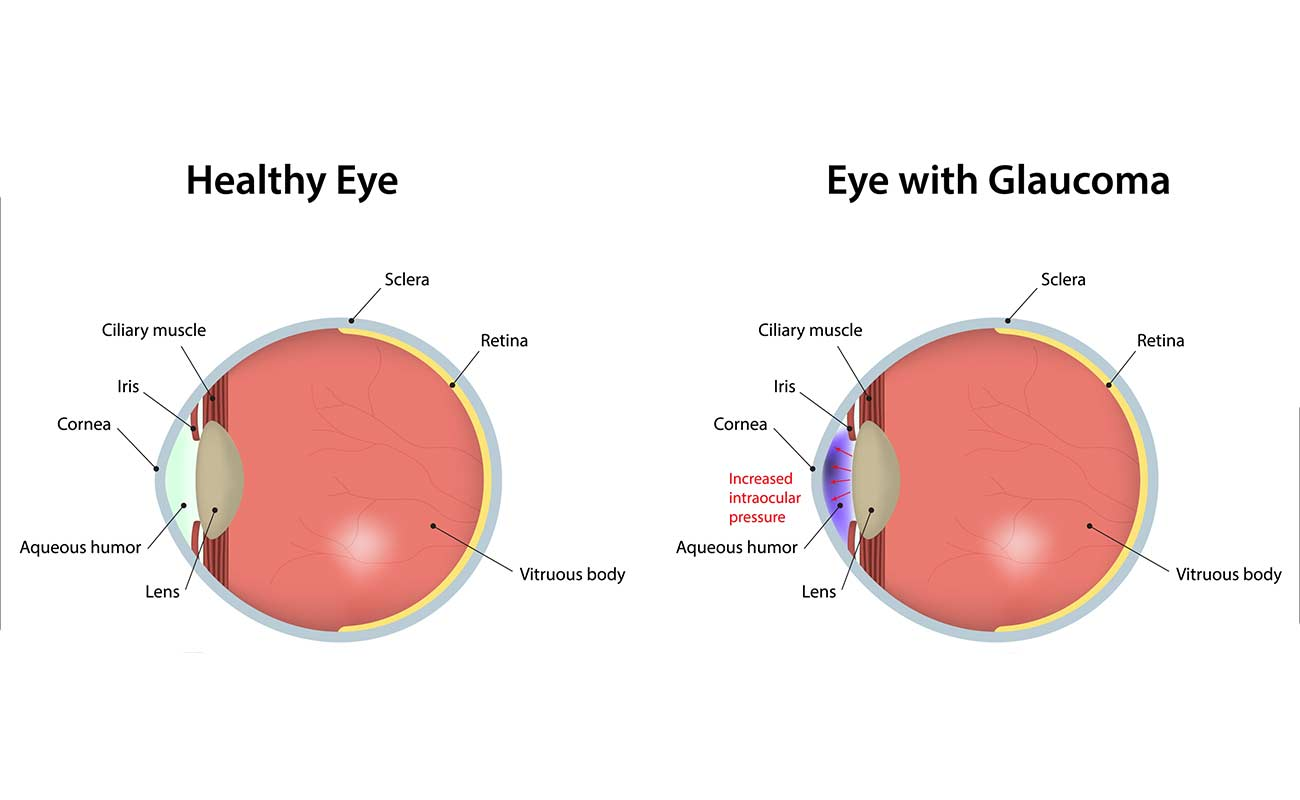 /uploads/871398Glaucoma-alale.co1.jpg